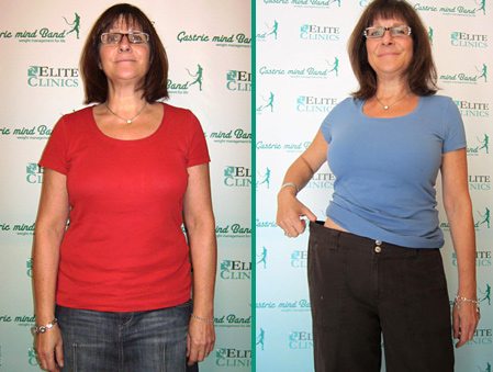 Lose 14lbs Gastric Mind Band Treatment. Ruth-Gerull