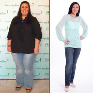 Gastric Band success stories