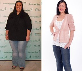 Non Surgical Permanent Weight Loss