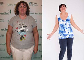 Weight Loss Hypnosis Hypnotherapy Non Surgical Permanent Weight Loss